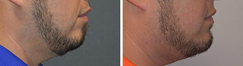 Chin Augmentation/ Chin Implant Before/After