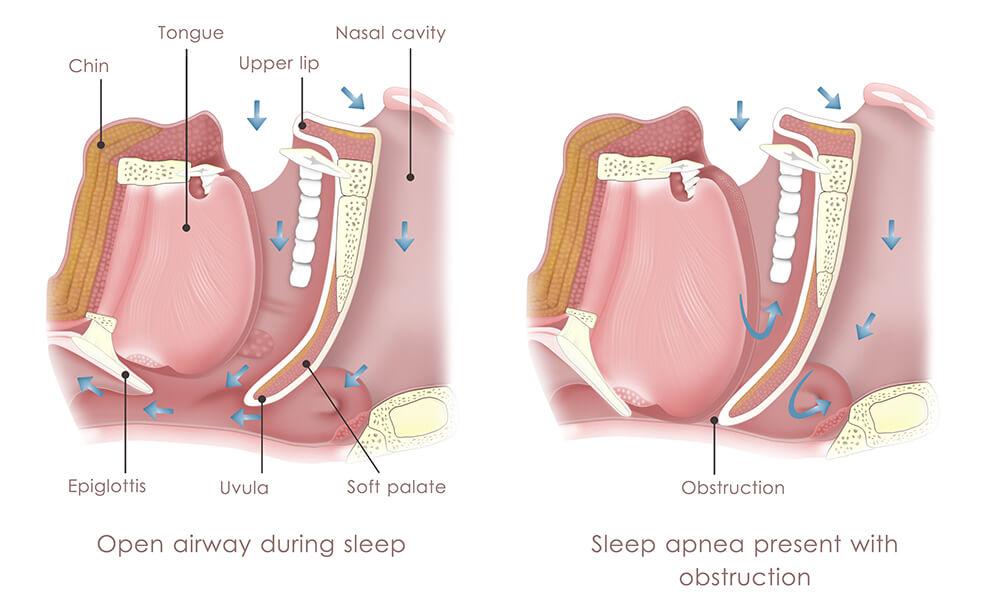 Medical Illustration of Obstructive Sleep Apnea