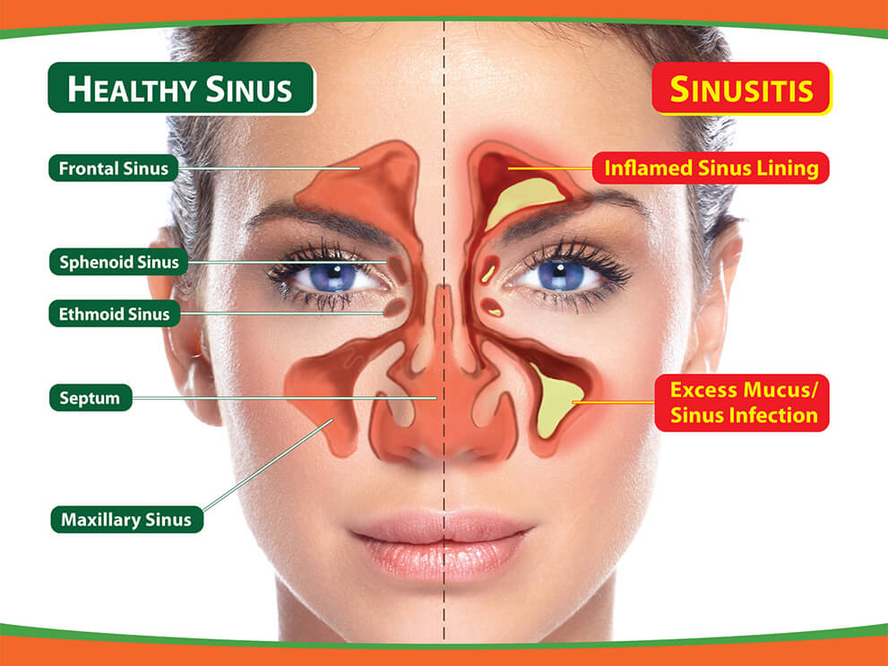 Healthy Sinus vs Sinusitis Diagram