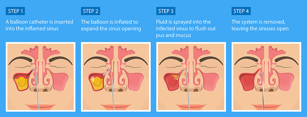 Balloon Sinuplasty Steps