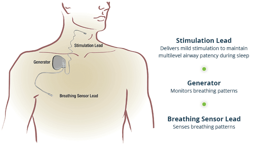 How Inspire Sleep Apnea Therapy Works Diagram