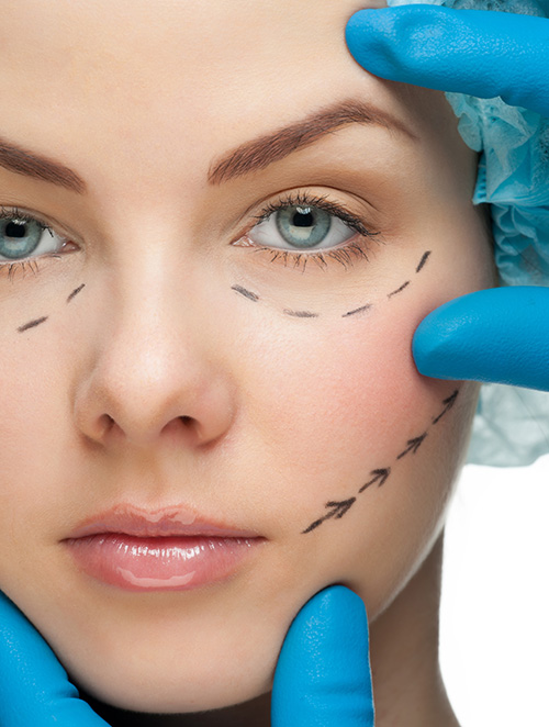 Beautiful young woman with perforation lines on her face before plastic surgery operation.