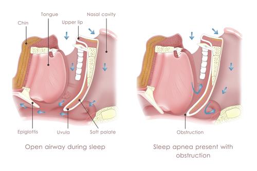 diagram of sleep apnea