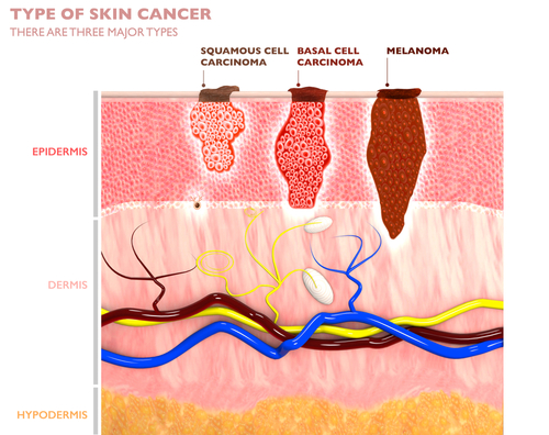Three major types of skin cancer affecting layers of the skin.