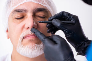 man having rhinoplasty surgery